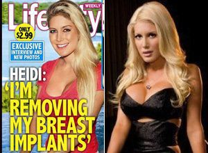 H Cup Breast Implants Heidi Montag Wa...