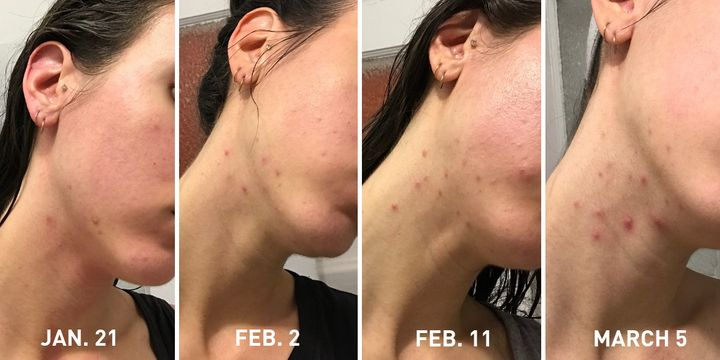 These photos were taken in 2018, when the worst of the breakouts began. Again, I can feel how painful the pimples were just by looking at them.