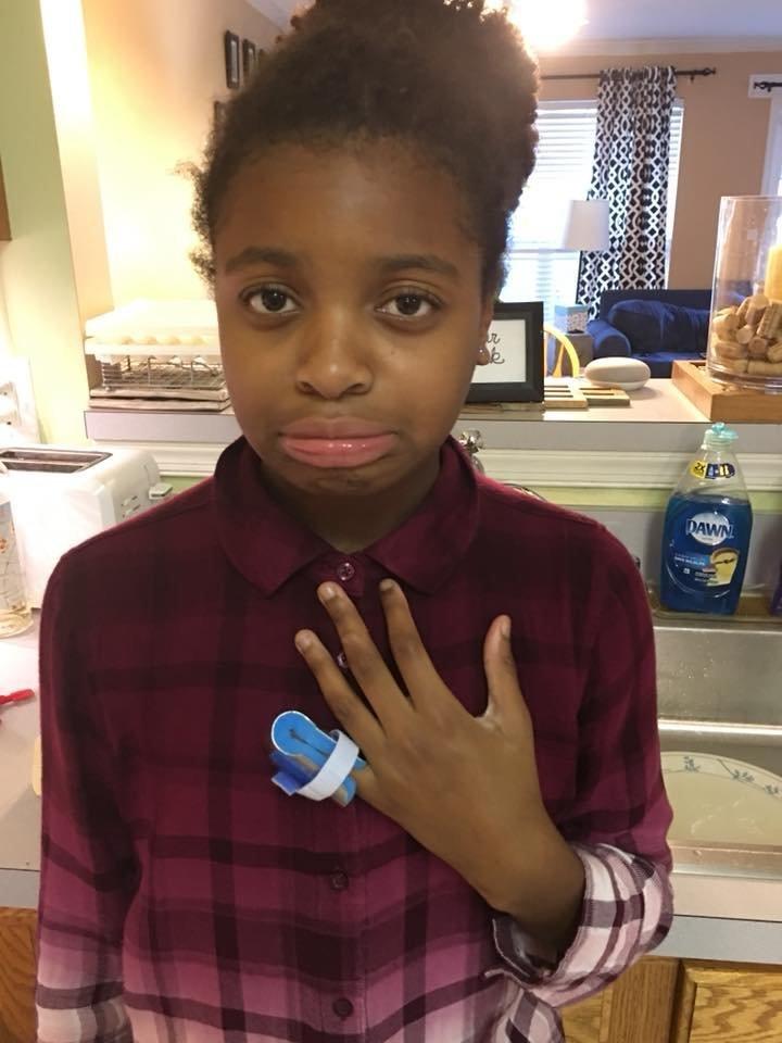 Amelia Dresser 12 was allegedly denied treatment for an injured finger