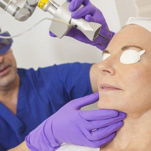 "For seriously pesky dark spots, dermatologists recommend lasers. ""For sun spots, we use the Q-switched ruby or alexandrite la"