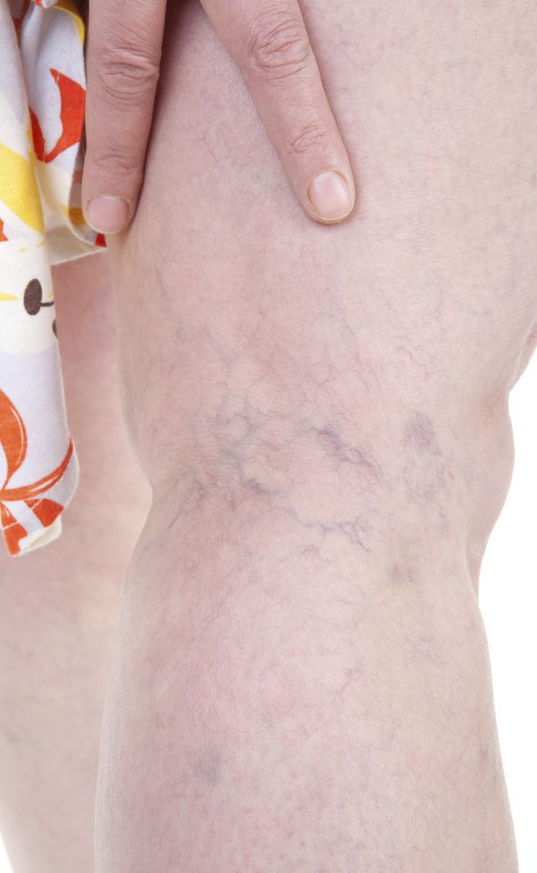 <strong>What it does:</strong> Sclerotherapy is the use of saline injections to eliminate unsightly veins that are large and