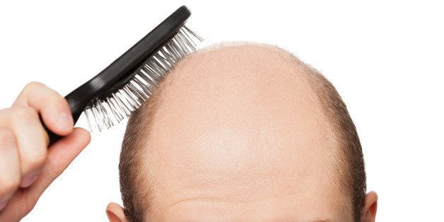 The Truth About Hair Loss And Baldness Cures | HuffPost