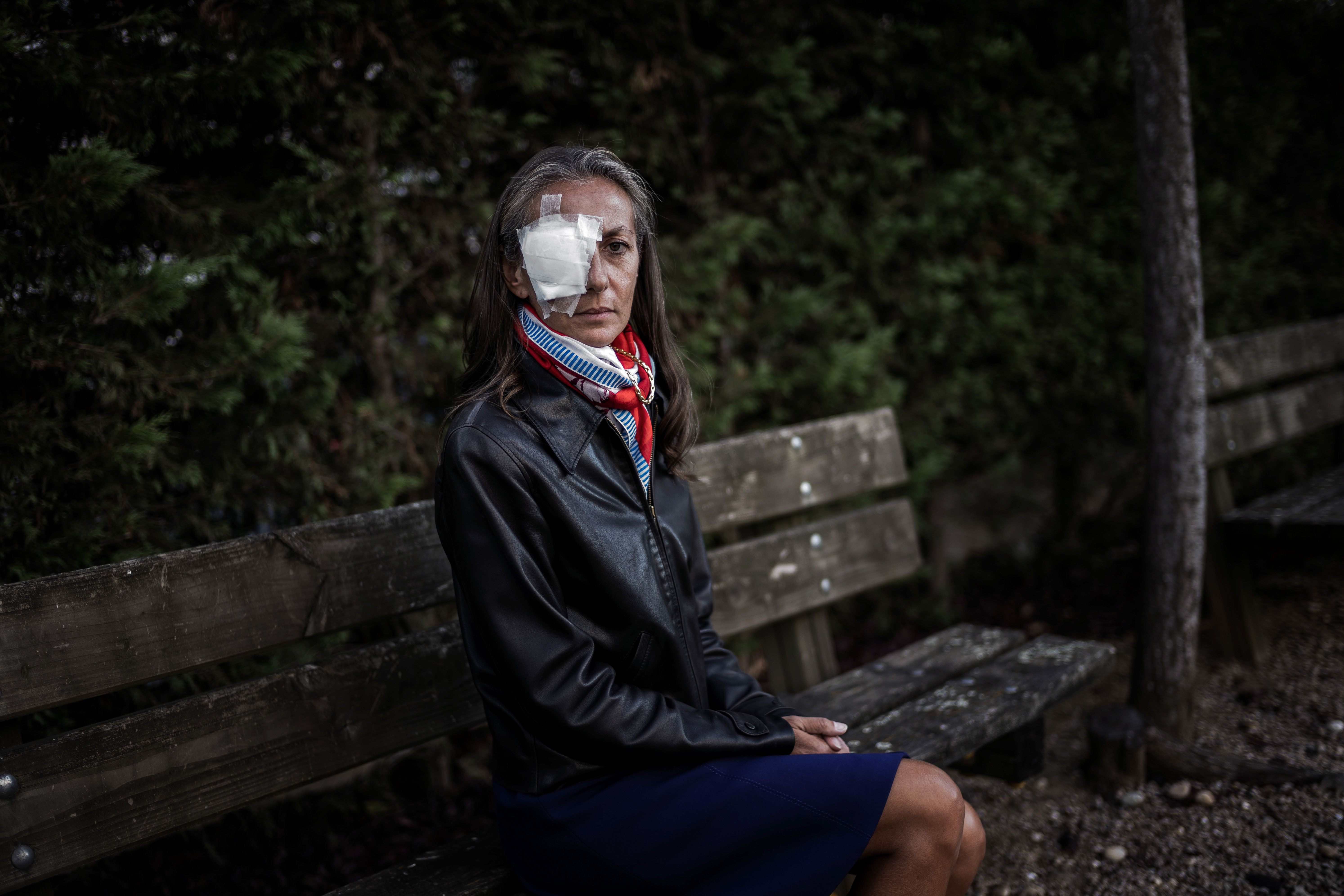 Frenchwoman Corine Remande, 49, poses on October 3, 2018 in Lyon after she said she was taking legal action against the golf Ryder Cup event's organisers after being hit and lost sight in her right eye on Friday's opening day, when Brooks Koepka's drive on the par-four sixth hole careered into the crowd at Le Golf National, near Paris. (Photo by JEFF PACHOUD / AFP)        (Photo credit should read JEFF PACHOUD/AFP/Getty Images)