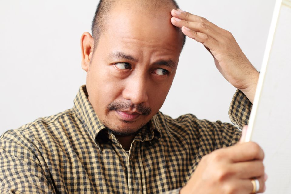 There really is no specific age men should fear. Generally, the risk of losing your hair is proportional to your age, says ha