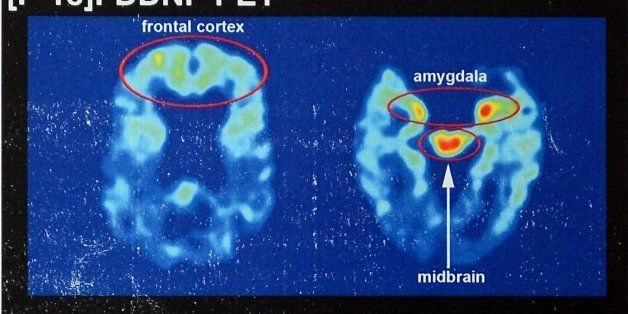 Recent brain scans of NFL hall of famer Joe DeLamielleure, who was diagnosed with CTE, the brain injury that is affecting so