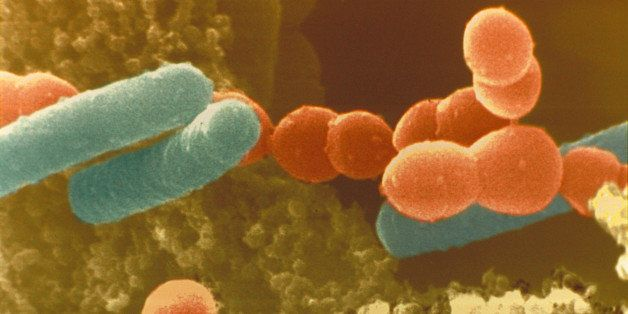 Color enhanced scanning electron micrograph (SEM) of Lactobacillus bulgaricus and Streptococcus thermophilus bacteria in yogu