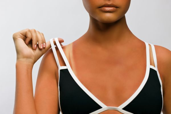 Every dermatologist we talked to said that the worst, most noticeable sun damage they see on women is on the chest. Any time