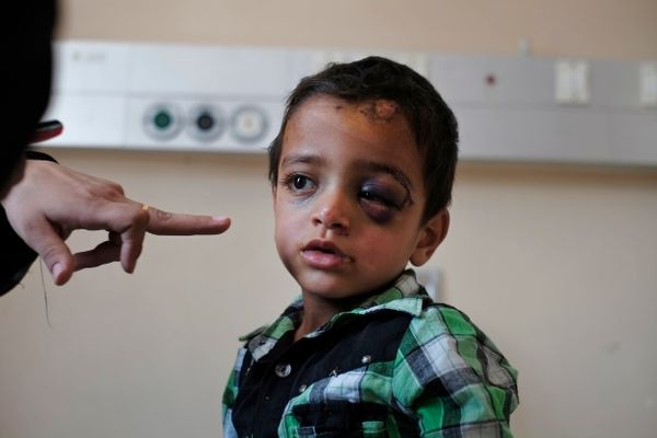 A relative points at Marwan Hassanein, 4, at the Shifa hospital in Gaza City, where he is hospitalized, Monday, July 28, 2014