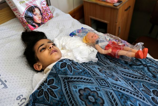 Palestinian Maha al-Sheikh Khalil, 7, rests in her hospital bed after receiving a doll as a present for the Muslim Eid al-Fit