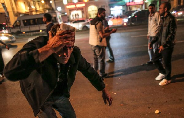 An injured man covers his forehead while Turkish riot police use water cannons and tear gas to disperse people who were prote