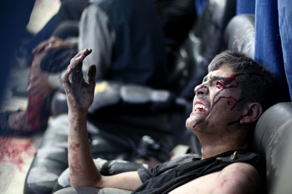 A wounded Syrian reacts to the pain at a makeshift hospital in the besieged rebel bastion of Douma, northeast of the Syrian c