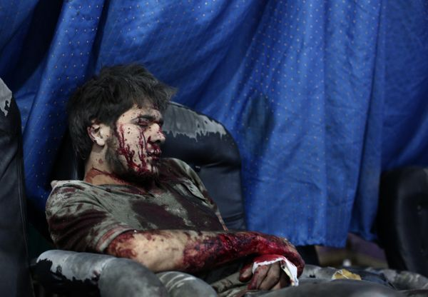 GRAPHIC CONTENT A wounded Syrian awaits treatment at a makeshift hospital in the besieged rebel bastion of Douma, northeast o