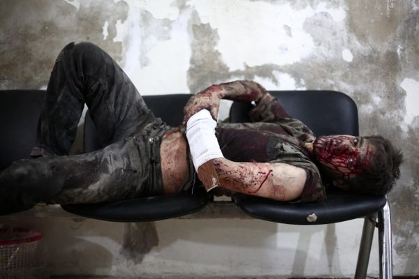 A wounded Syrian awaits treatment at a makeshift hospital in the besieged rebel bastion of Douma, northeast of the Syrian cap