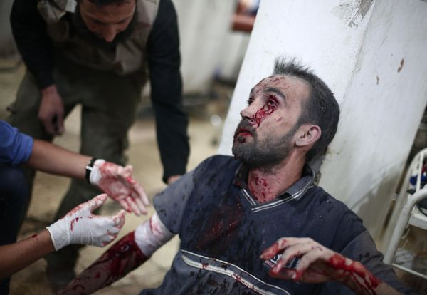 GRAPHIC CONTENT A wounded Syrian receives treatment at a makeshift hospital in the besieged rebel bastion of Douma, northeast