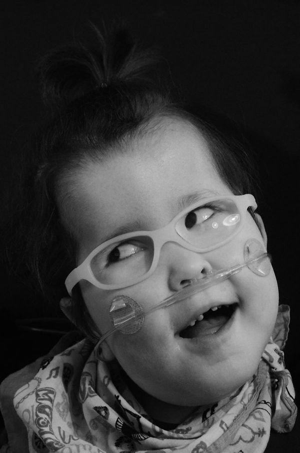 Cora was born with a rare multiple-malformation syndrome that causes her to have body and head overgrowth and various abnorma