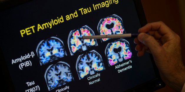R. Scott Turner, Professor of Neurology and Director of the Memory Disorder Center at Georgetown University Hospital, points