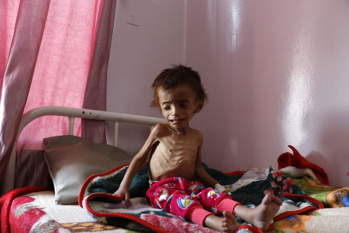 A malnourished child receives treatment at the Sabeen hospital in Sana'a, Yemen, on Oct. 6. Saudi Arabia's military campaign
