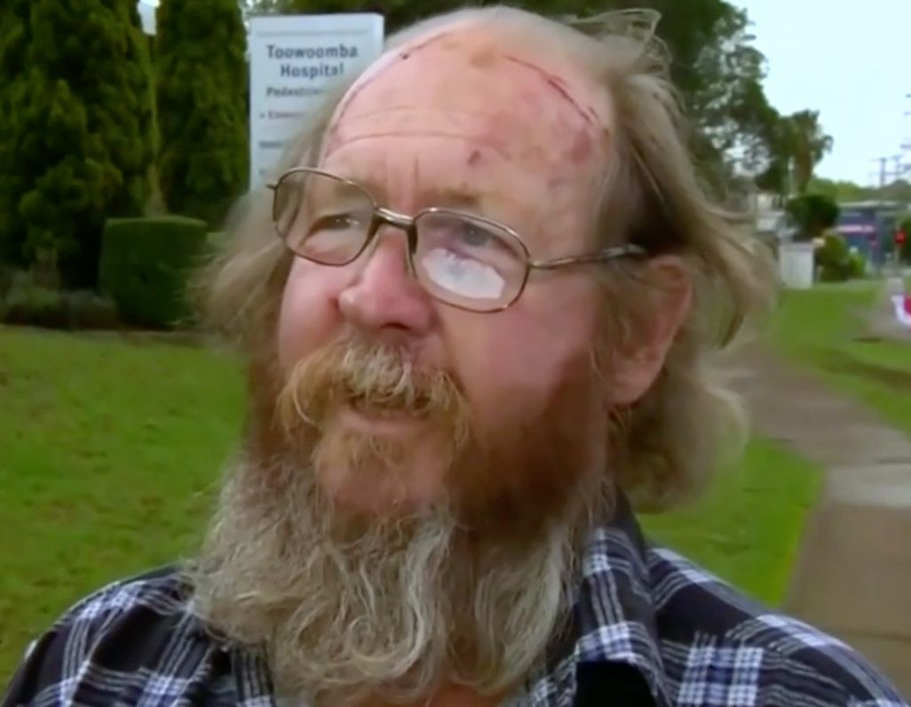 Jim Smith discusses the injuries he suffered when attacked by a kangaroo.