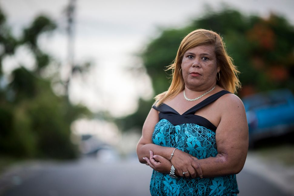 Rivera Acosta stands outside of her home in Vieques. The mother of two said the long journey to the main island for treatment
