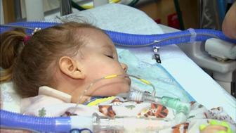 """""""GMA"""" breaks down what to know about the recent reports of multiple sporadic, clinically-diagnosed cases of acute flaccid myelitis."""
