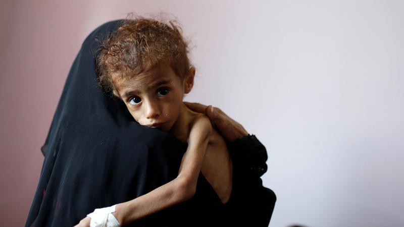 """""""Se la situazione persiste potremmo avere ulteriori 3.5 milioni yemeniti in stato di insicurezza alimentare e quasi 12 milioni in tutto che avranno bisogno con urgenza di sostegno per il cibo ed evitare che periscano di fame""""  lo ha riferito il portavoce del WFP (ONU)."""