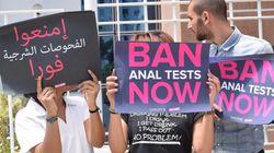 Bientôt une proposition de loi pour interdire le test anal en