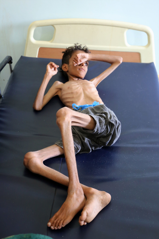 미국과 영국이 사우디에 '예멘 내전 휴전'을 압박하기
