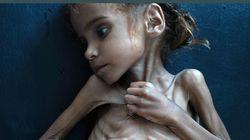 Πέθανε το κορίτσι που έγινε η «εικόνα του λιμού» στην Υεμένη. Την έλεγαν Αμάλ Χουσέιν και ήταν 7