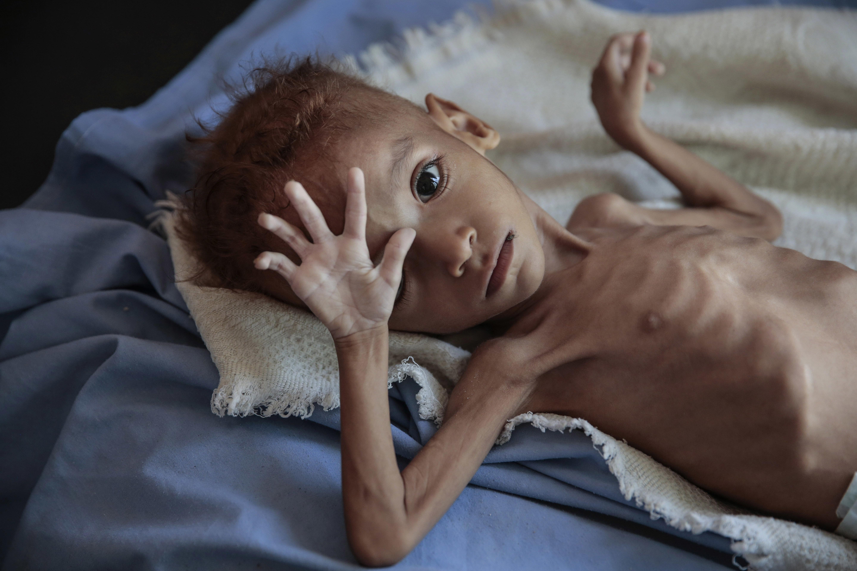 Η επίγεια κόλαση της Υεμένης: 1,8 εκατ. παιδιά κάτω των 5 ετών σε κατάσταση «οξέος
