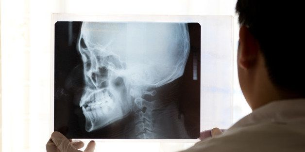 x ray picture of the skull in...
