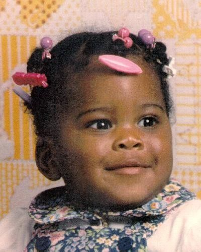Circumstances: The circumstances behind child's disappearance are unknown at this time. She has burn scars on the top of one