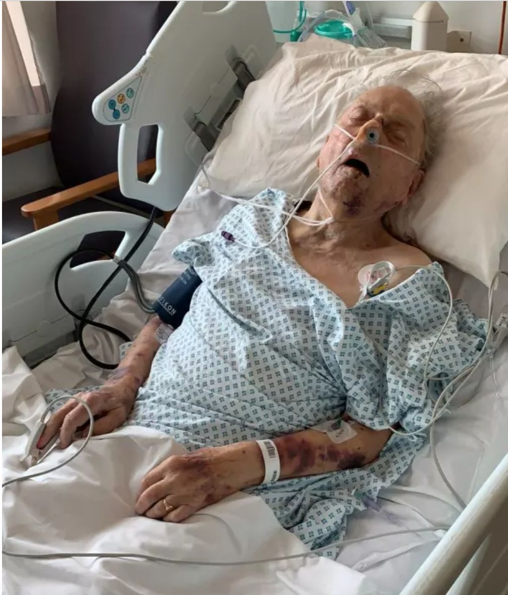 98-Year-Old Fighting For Life After Robbery And Attack In His North London