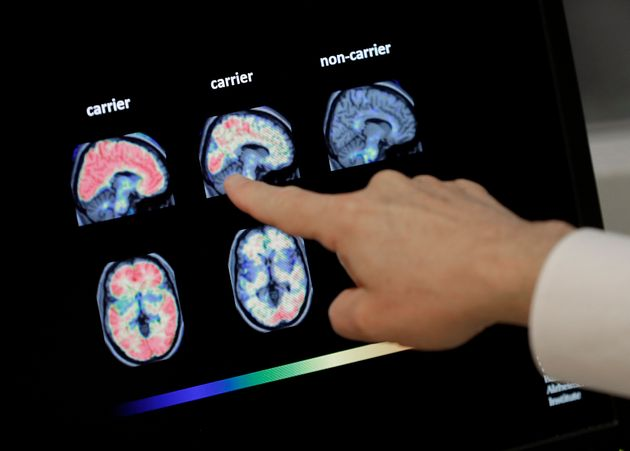 Τεχνητή νοημοσύνη προβλέπει τη νόσο Αλτσχάιμερ χρόνια πριν τη διάγνωση από τους