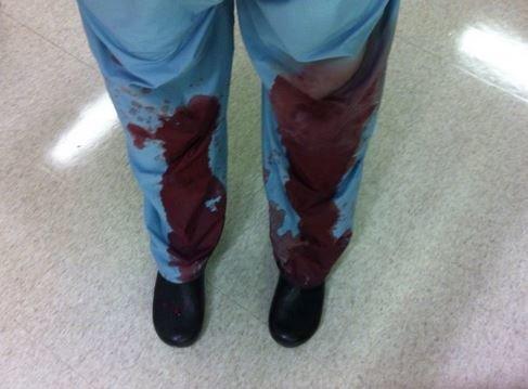 Γιατροί ανεβάζουν φωτογραφίες με τις ματωμένες μπλούζες τους (για έναν πολύ καλό