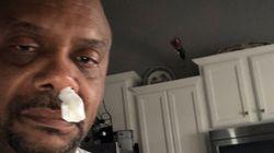 Mann läuft die Nase – kurz darauf später muss er operiert