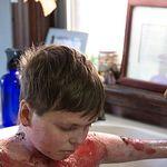 Junge hat seltene Krankheit: Eine Umarmung könnte tödlich