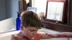 Eine Umarmung könnte tödlich sein: Junge hat seltene Krankheit – so meistert er sein Leben