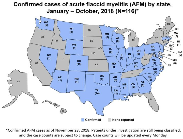 There are 116 confirmed cases of acute flaccid myelitis in 31 states, the CDC said.