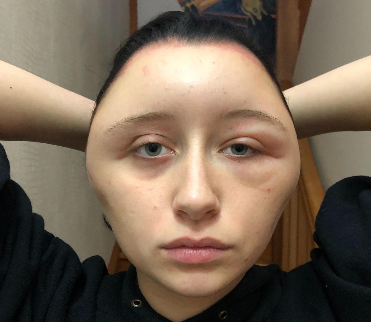 Nach dem Haarefärben schwillt ihr Kopf auf die doppelte Größe – jetzt warnt die Frau vor der