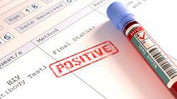 Plus de 12.000 cas de VIH et SIDA enregistrés en Algérie depuis