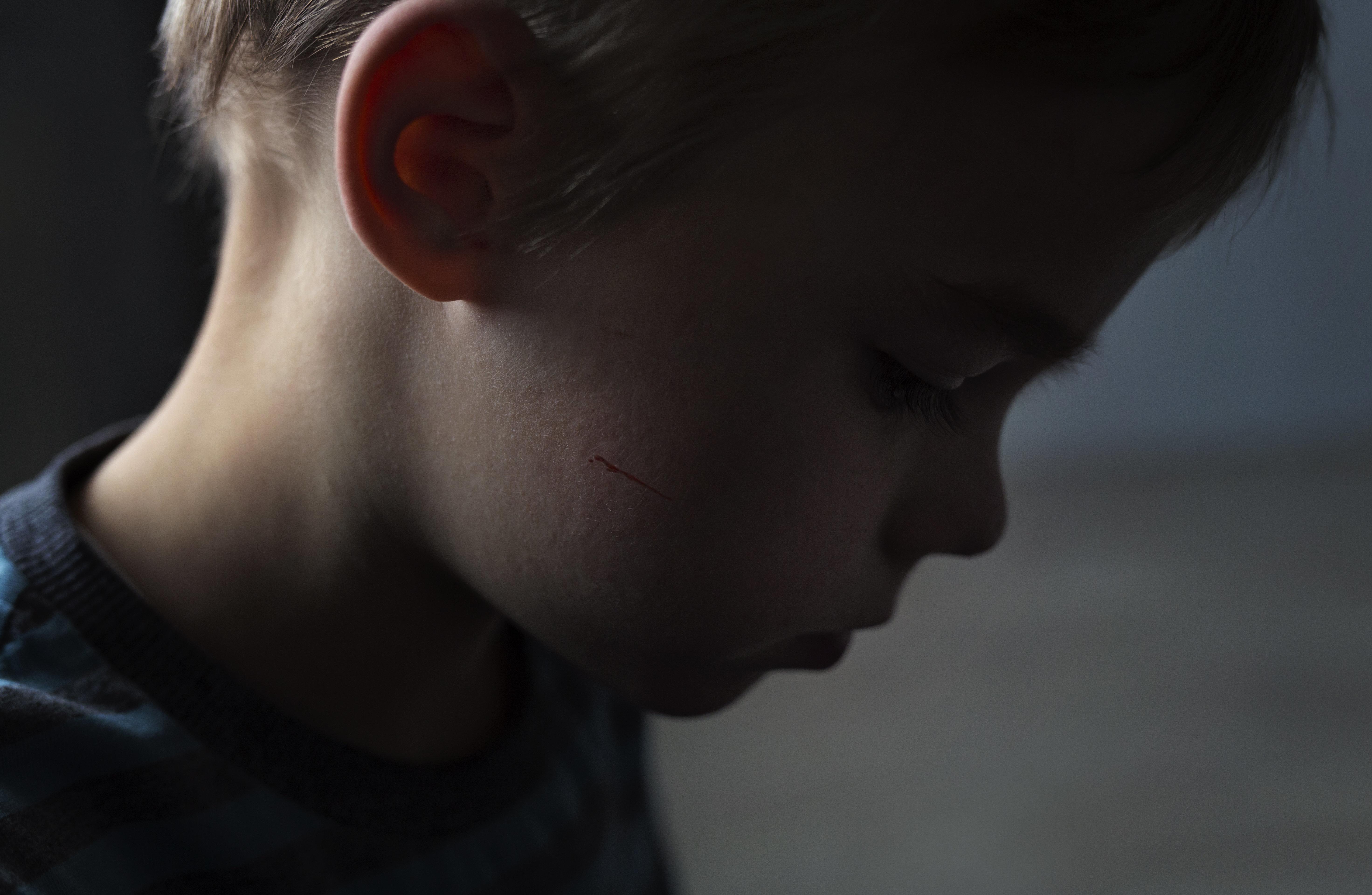 Frankreich will Gewalt gegen Kinder