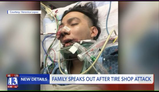 Luis Gustavo Lopez, an 18-year-old student atSalt Lake Community College, got a shattered cheekbone and eye socket in t