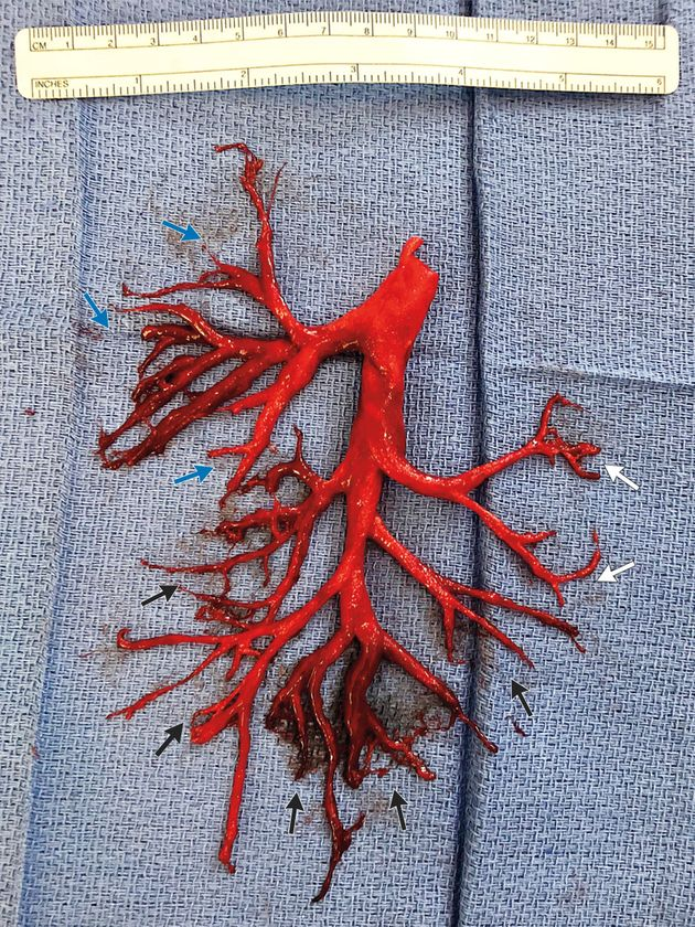 The rare blood clot, which is a cast of the right bronchial