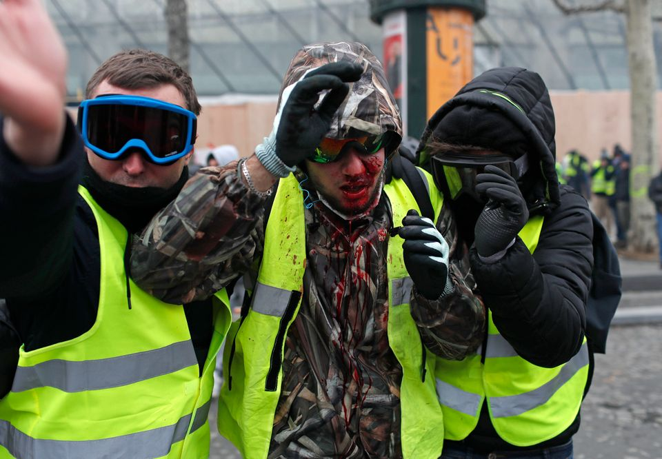 A demonstrator wearing a yellow vest is covered in blood after getting in injured during a protest in