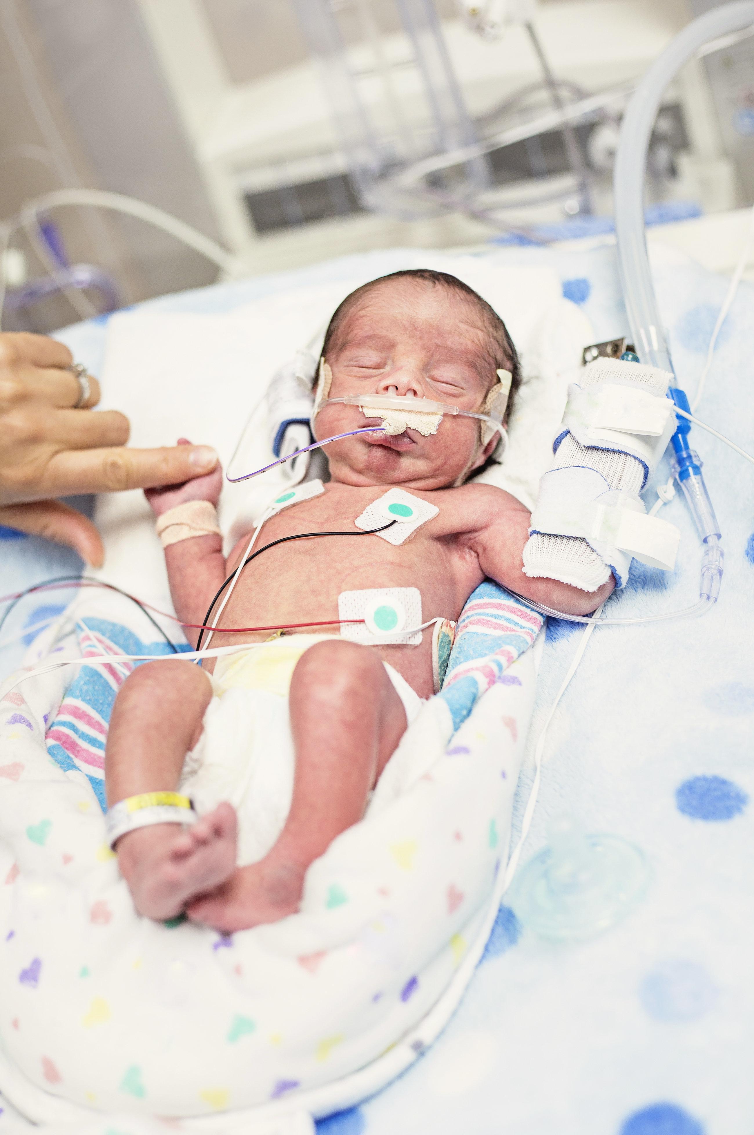 Baby stirbt an Herpes-Virus – Jetzt warnt die Mutter davor, Babys zu