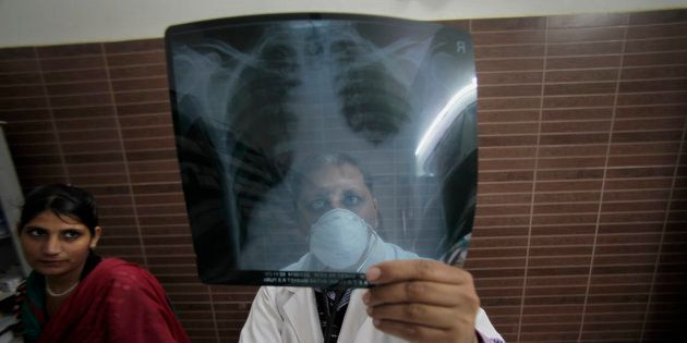 How Drug-Resistant TB Can Show The Path To Tackling Antimicrobial