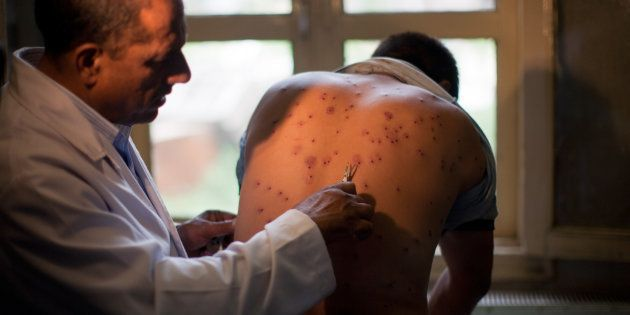 A Kashmiri doctor takes out the pellets from the body of a Kashmiri youth on July 11, 2016 in