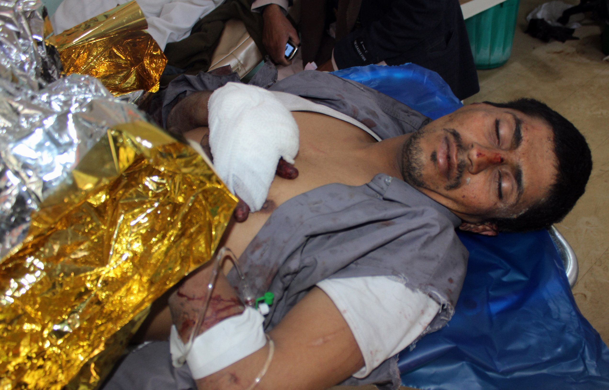 A Yemeni man reportedly wounded in a Saudi-led coalition air strike lies on a hospital bed in the northwestern city of Saada, on December 3, 2018. - The United Nations has described Yemen as the world's worst humanitarian disaster, with at least 10,000 people killed since the Saudi-led coalition intervened in 2015 to bolster the embattled government. (Photo by STRINGER / AFP)        (Photo credit should read STRINGER/AFP/Getty Images)