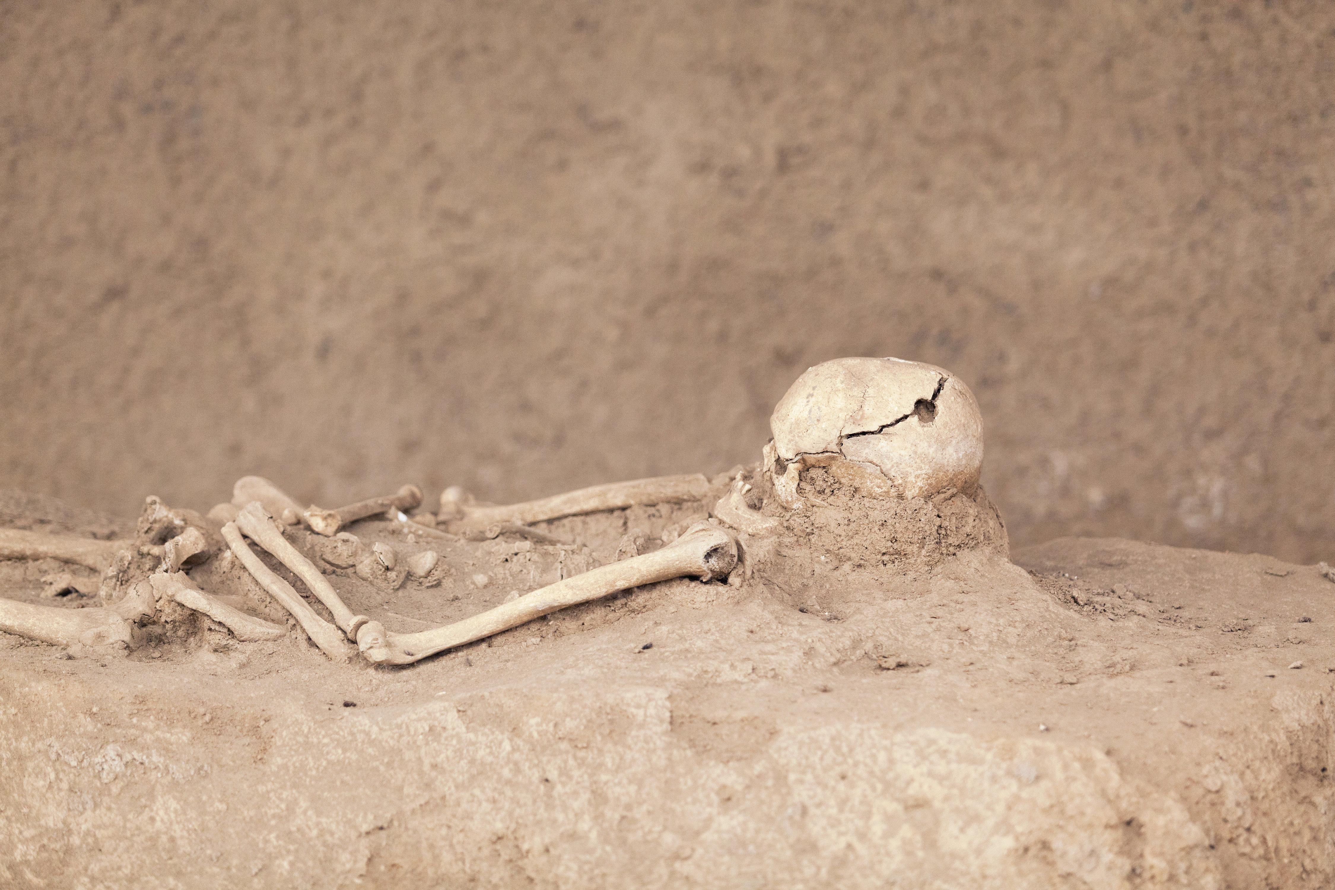 Προϊστορικές επεμβάσεις: Χιλιάδες χρόνια πριν, οι πρόγονοί μας άνοιγαν τρύπες στο κρανίο.