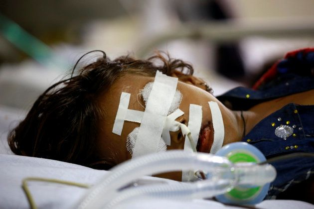 A child is seen in the Intensive care unit in the Baba Raghav Das hospital in Gorakhpur district, India...